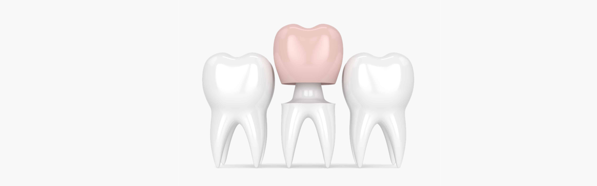 What Are Dental Crowns and Are They Effective?
