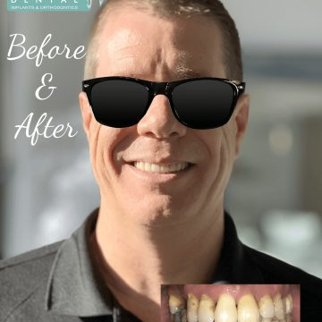 man with before and after treatment