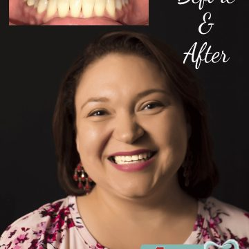 lady with before and after treatment