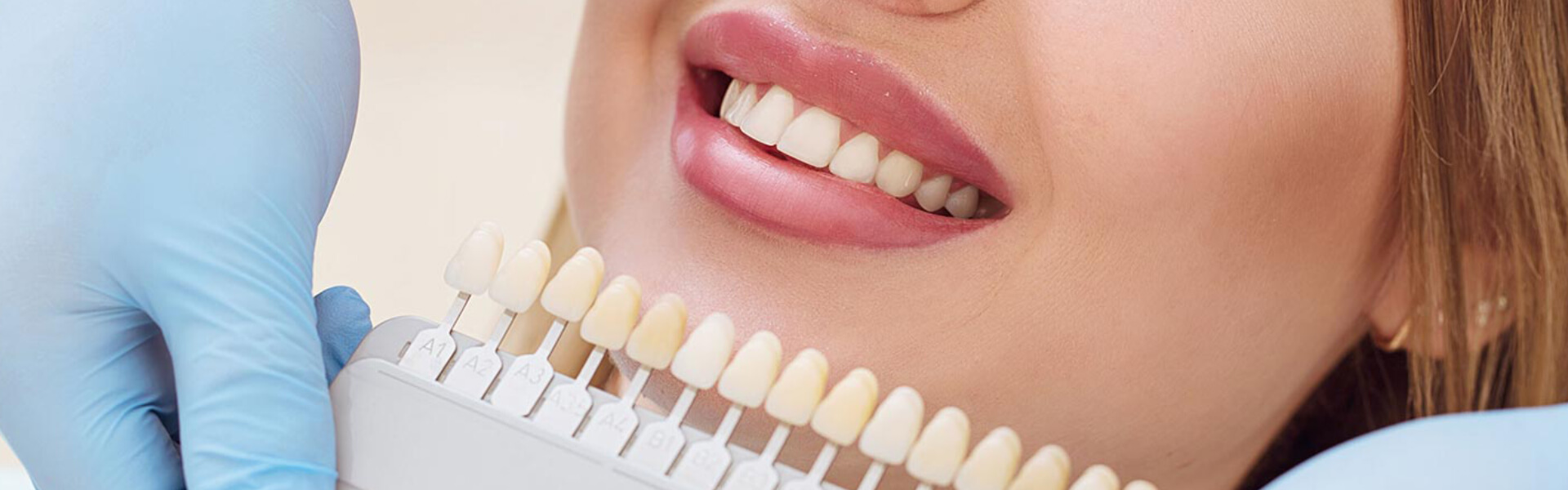 Overview Of Dental Veneers, Types, And Uses.